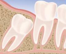 Denti del giudizio: quando rimuoverli?