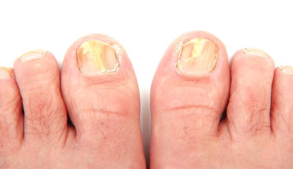 Micosi: cause, sintomi, prevenzione e cure